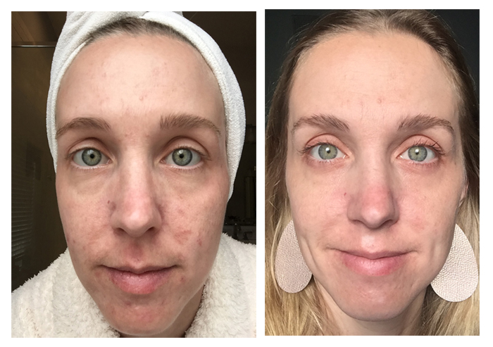 Before and After 1 year of using Unblemish. I've been using Rodan + Fields Unblemish for a year, and have seen wonderful results. See the blog for a full year's worth of pictures!