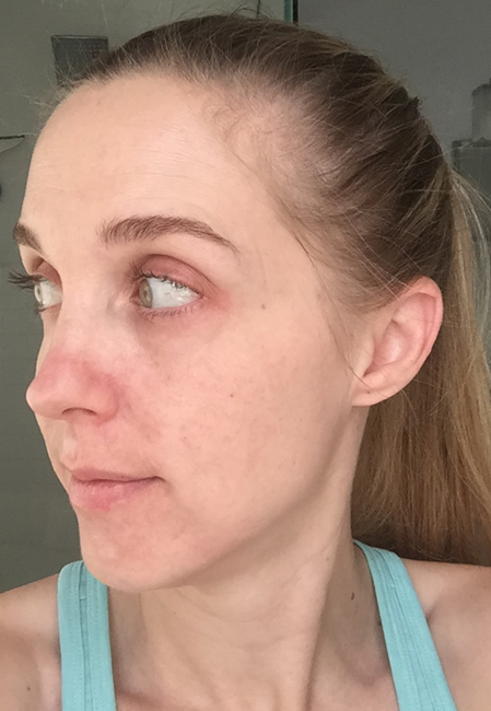 Picture at 10 months of using Unblemish. I've been using Rodan + Fields Unblemish for a year, and have seen wonderful results. See the blog for a full year's worth of pictures!