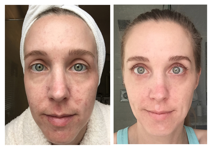 Before and After 10 months using Unblemish. I've been using Rodan + Fields Unblemish for a year, and have seen wonderful results. See the blog for a full year's worth of pictures!
