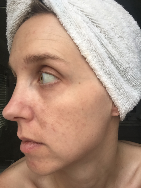 5 Weeks of using Umblemish picture. I've been using Rodan + Fields Unblemish for a year, and have seen wonderful results. See the blog for a full year's worth of pictures!