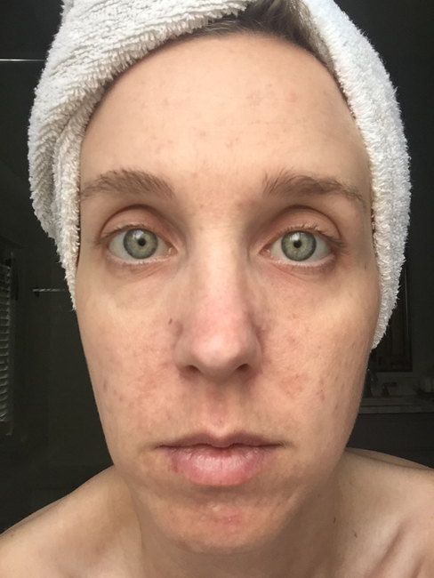 5 Weeks Using Umblemish picture. I've been using Rodan + Fields Unblemish for a year, and have seen wonderful results. See the blog for a full year's worth of pictures!