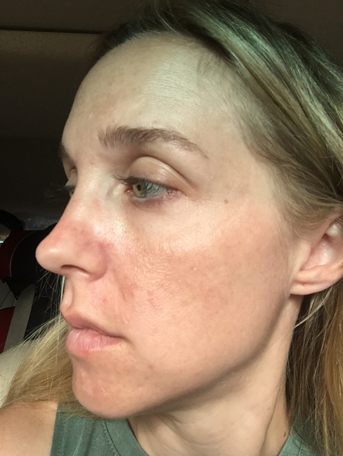 6 Months of using Umblemish picture. I've been using Rodan + Fields Unblemish for a year, and have seen wonderful results. See the blog for a full year's worth of pictures!