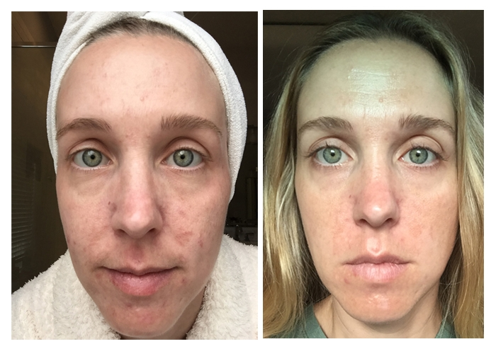 Before and After 6 months using Unblemish. I've been using Rodan + Fields Unblemish for a year, and have seen wonderful results. See the blog for a full year's worth of pictures!