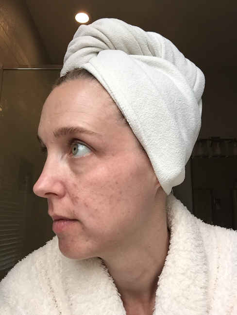 Before using Unblemish. I've been using Rodan + Fields Unblemish for a year, and have seen wonderful results. See the blog for a full year's worth of pictures!